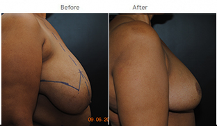 Breast Reduction NYC Case 1072