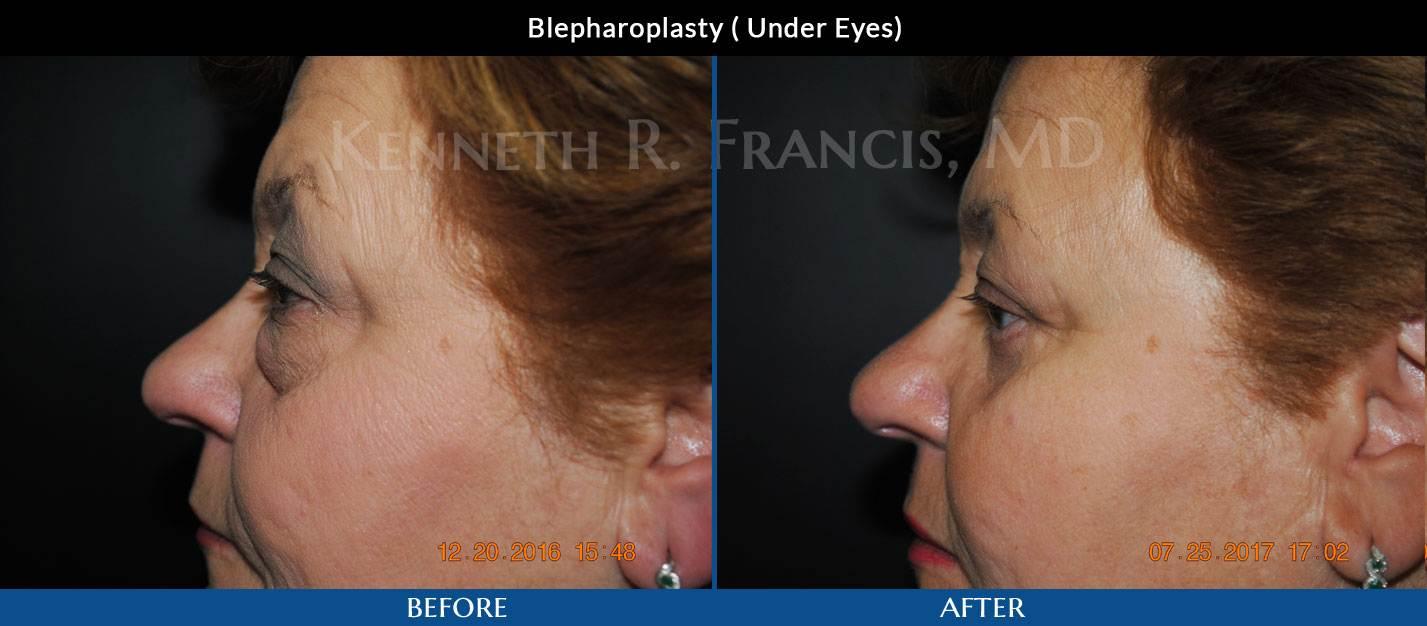 Blepharoplasty (Eyelid) NYC