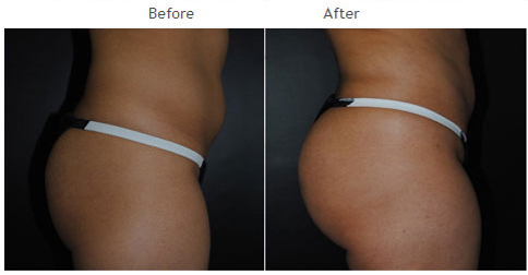 Butt Augmentation NYC