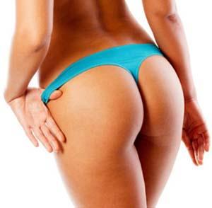 Brazilian Butt Lift NYC procedure - Butt augmentation New York City