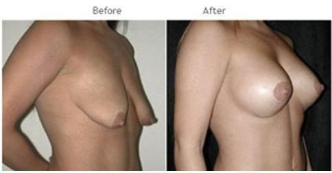 Breast Lift NYC, breast lift in new yotk, lift breast
