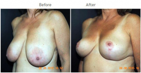 breast reduction NYC