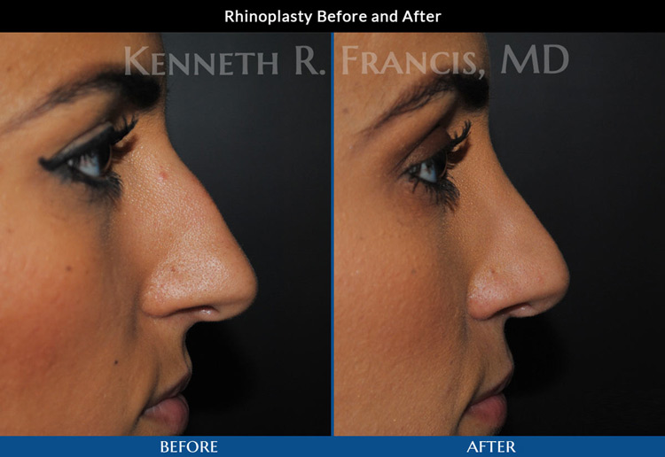 Rhinoplasty (Nose) before and after