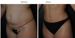 Tummy Tuck NYC