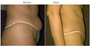 Liposuction New York City - Smartlipo Patient 1007