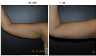 Arm Liposuction NYC Case 1012
