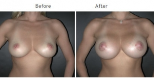 Breast Augmentation NYC Case 1045