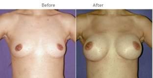 Breast Augmentation NYC Case 1048