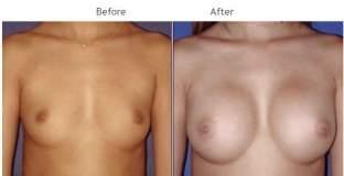 Breast Augmentation NYC Case 1049