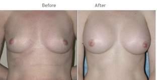 Breast Augmentation NYC Case 1050