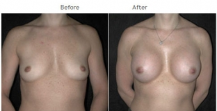 Breast Augmentation NYC Case 1051