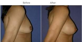 Breast Augmentation NYC Case 1053