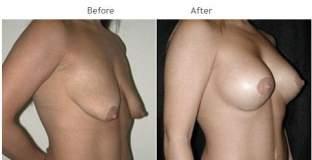 Breast Augmentation NYC Case 1054