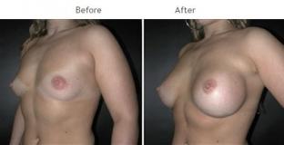 Breast Augmentation NYC Case 1056