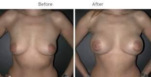 Breast Augmentation NYC Case 1058