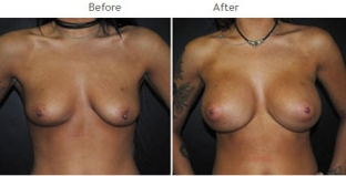 Breast Augmentation NYC Case 1060