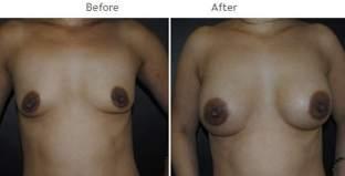 Breast Augmentation NYC Case 1062