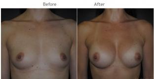 Breast Augmentation NYC Case 1063