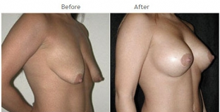 Breast Lift NYC Case 1064