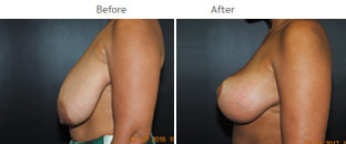 Breast Reduction NYC Case 1069