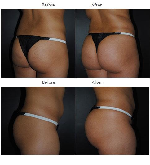 Brazilian Butt Lift Surgeons, Brazilian Butt Lift Doctors