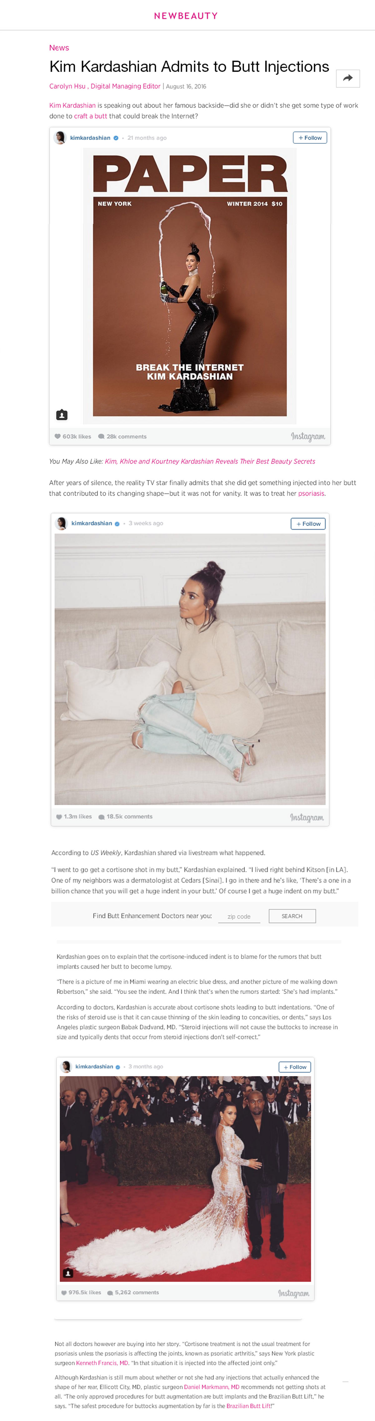 kim kardashian Brazilian Butt Lift