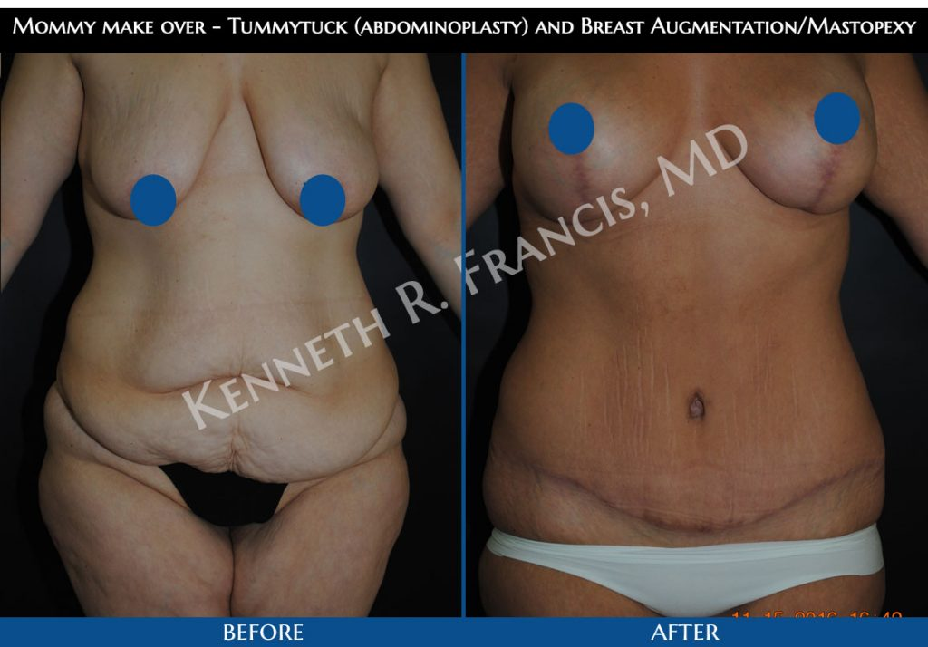 Mommy make over - Tummytuck (abdominoplasty) and Breast Augmentation/Mastopexy