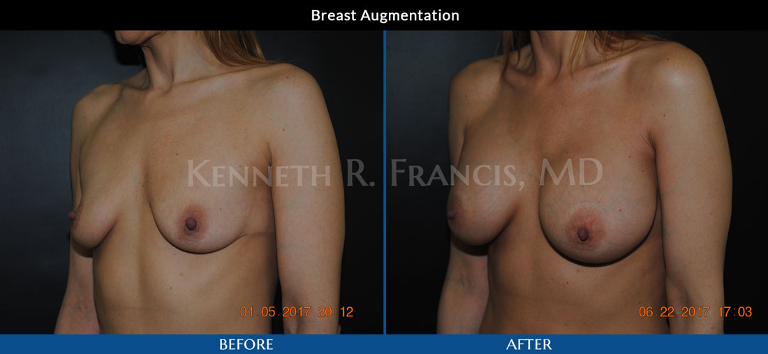 Breast Augmentation NYC Case 1065