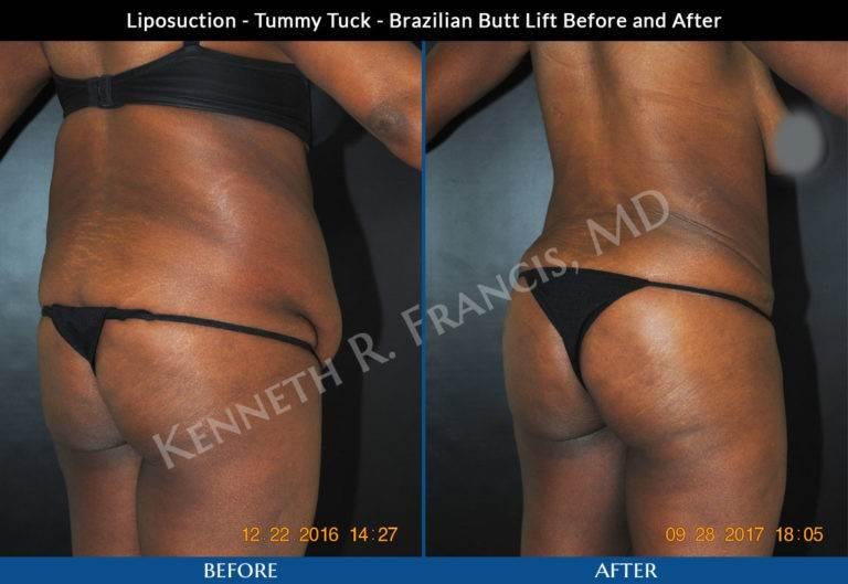 Liposuction, Brazilian butt lift, Tummy tuck NYC