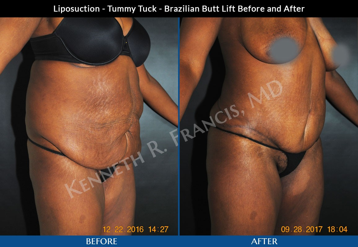 Case 1024 Tummy Tuck