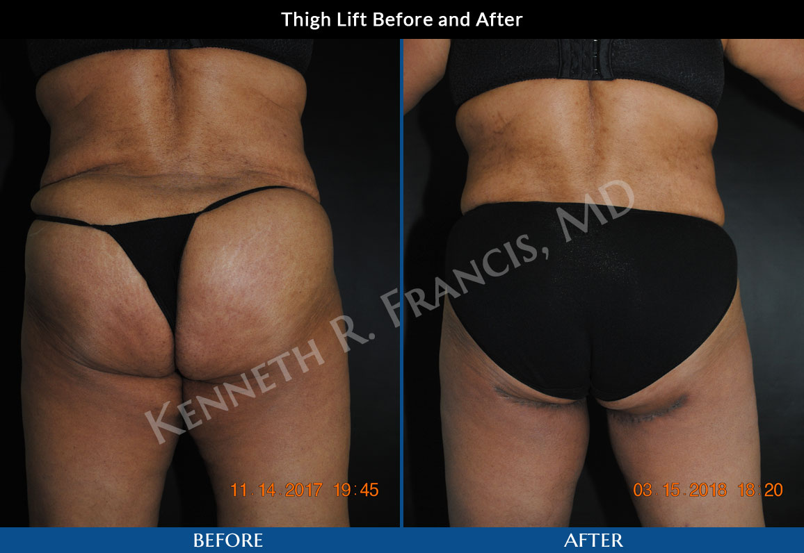 Thigh Lift Plastic Surgery Manhattan